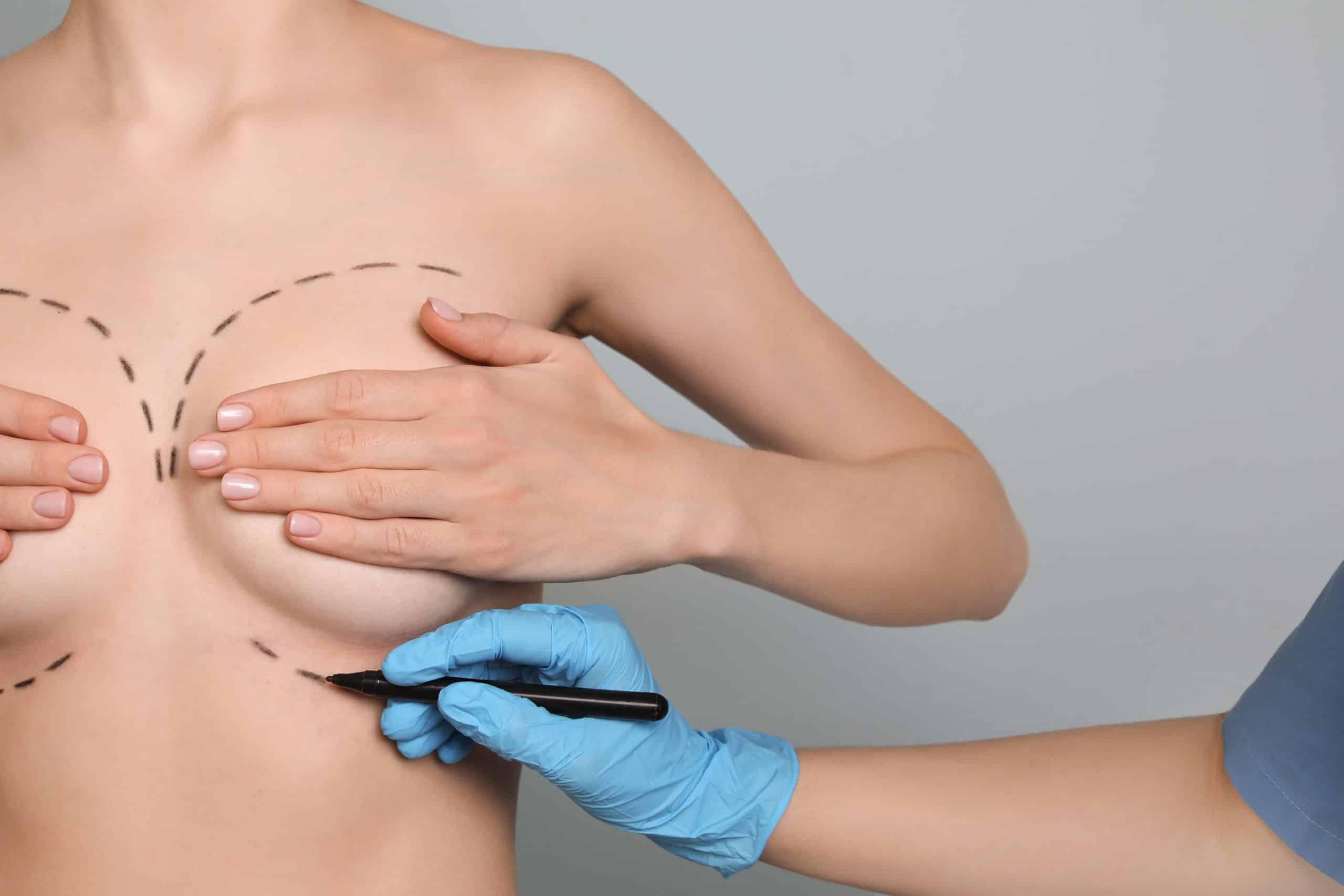 operacion aumento de pecho