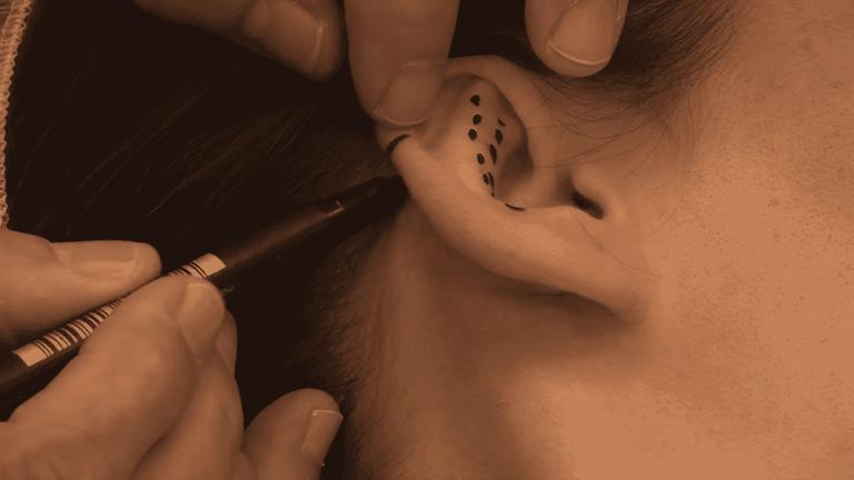 Otoplastia: la operación para acabar con las orejas de soplillo