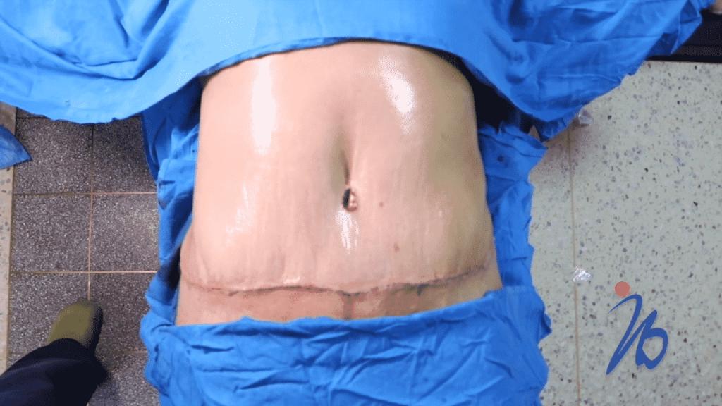 eliminar cicatreices abdominoplastia