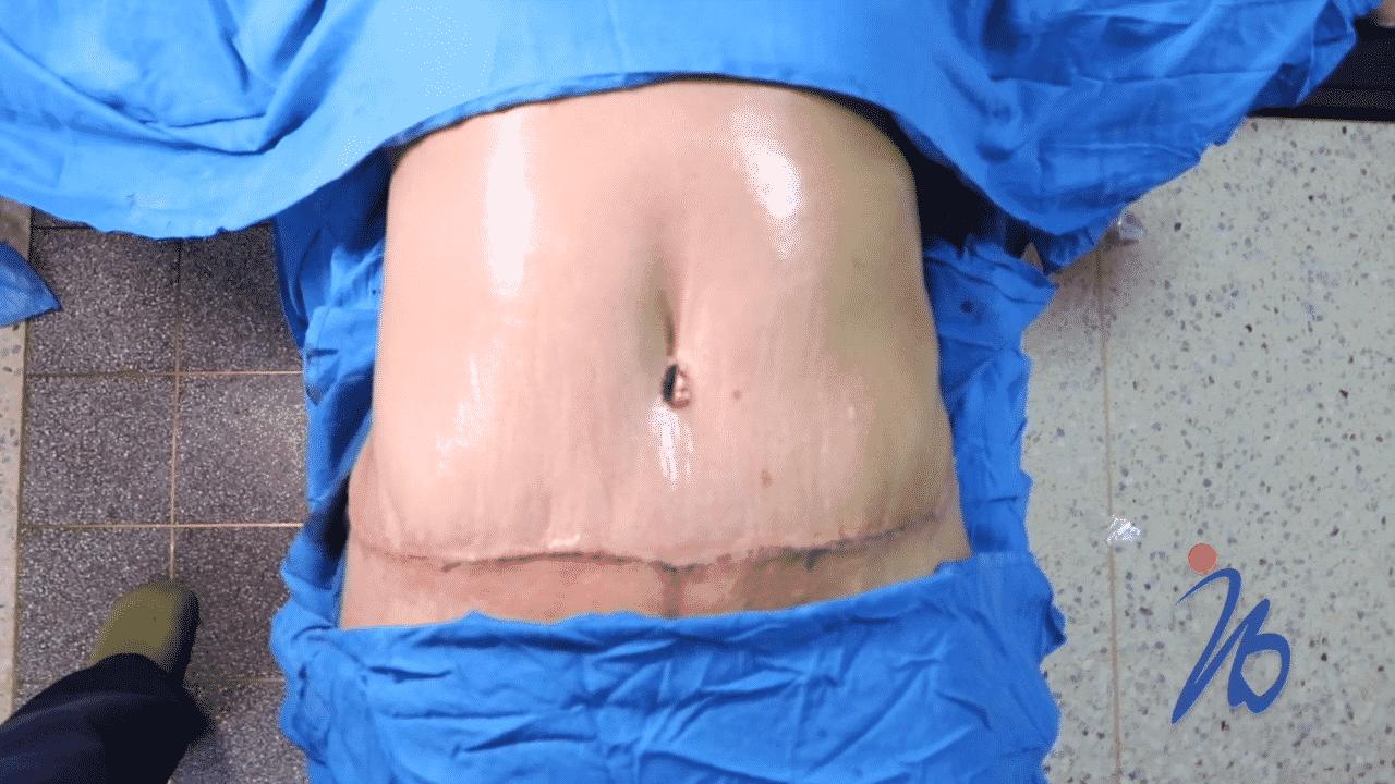 cicatrices de la abdominoplastia