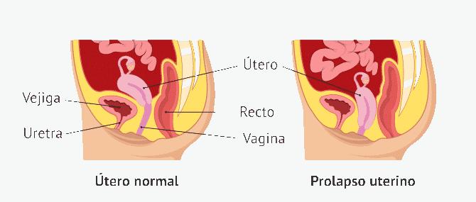 prolapso uterino