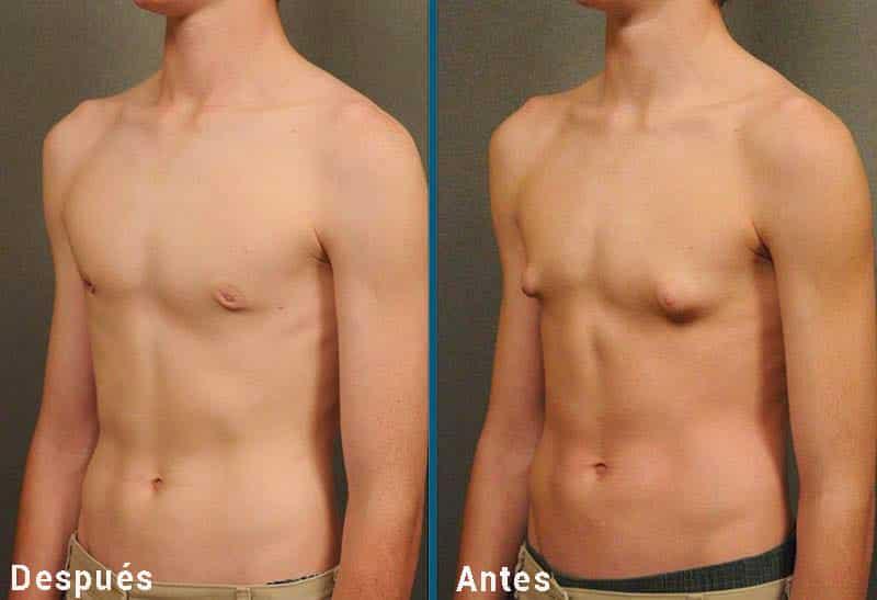 torso de chico de antes y después ginecomastia