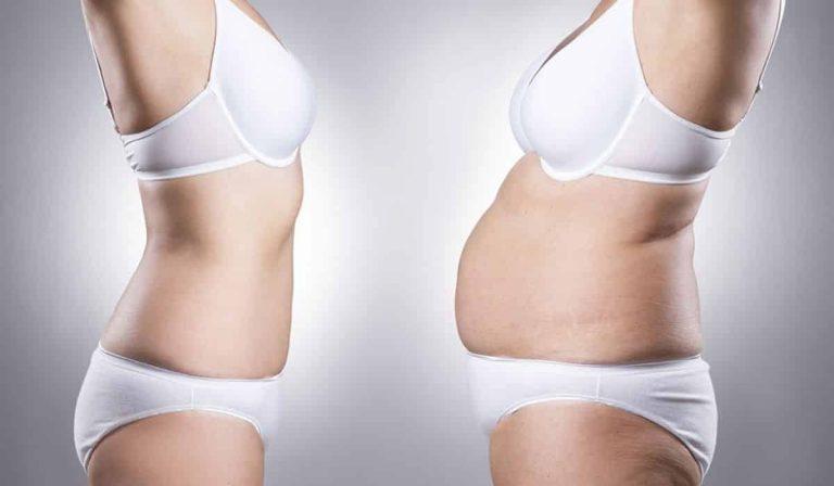 Lipoescultura: Reacomodar la grasa de un área del cuerpo en otra