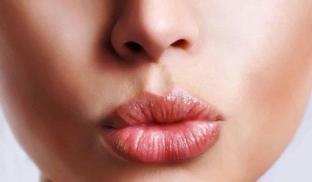 Queiloplastia Relleno de labios con apariencia carnosa