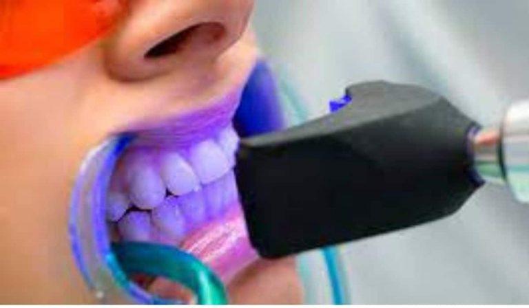 ¿Cuándo debo hacerme un blanqueamiento dental?