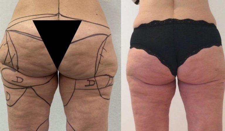 ¿Cómo tratar la lipedema y reducir el exceso de grasa?