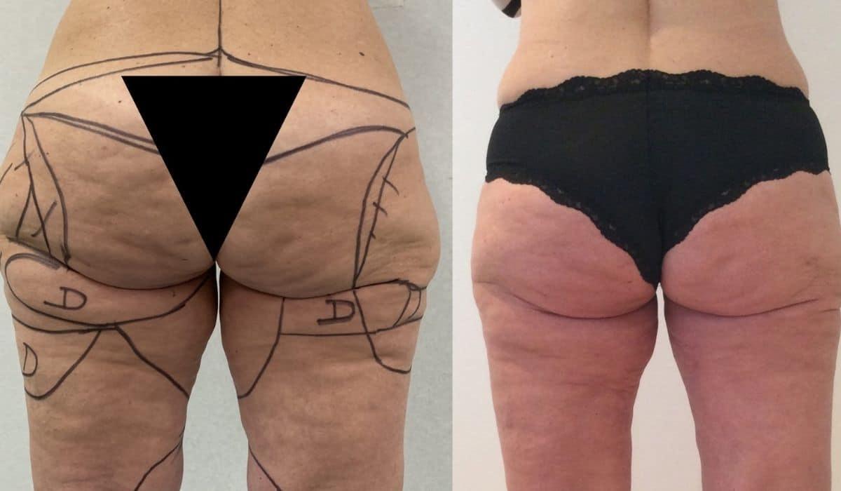 ¿Cómo tratar la lipedema y reducir el exceso de grasa