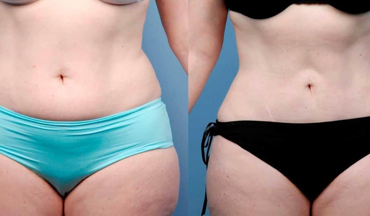 ¡Combate el exceso de grasa con BodyTite!