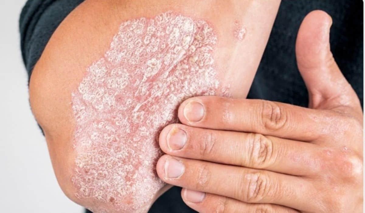 ¿Cómo podemos curar la psoriasis