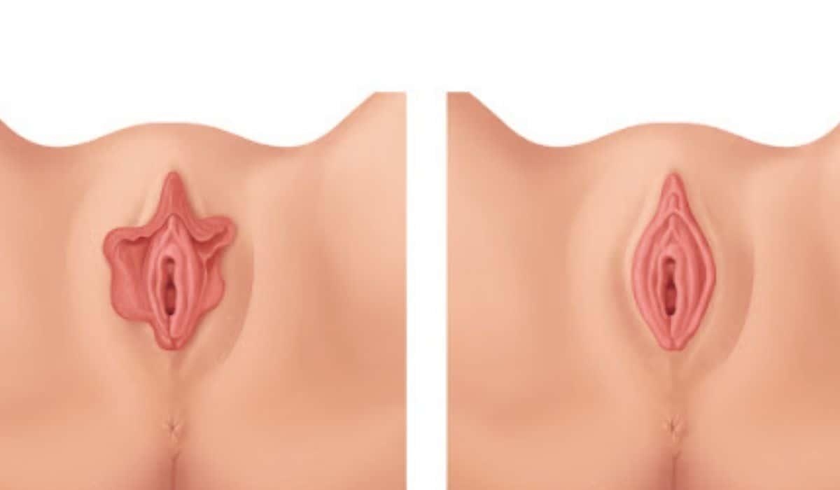 ¿En qué consiste la vaginoplastia