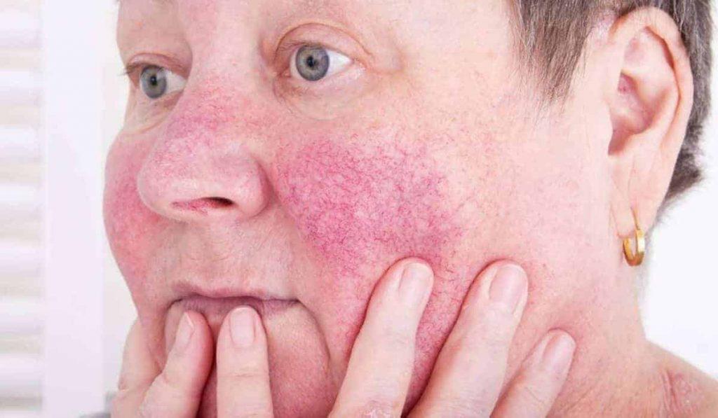 Los mejores tratamientos para lidiar con la rosácea