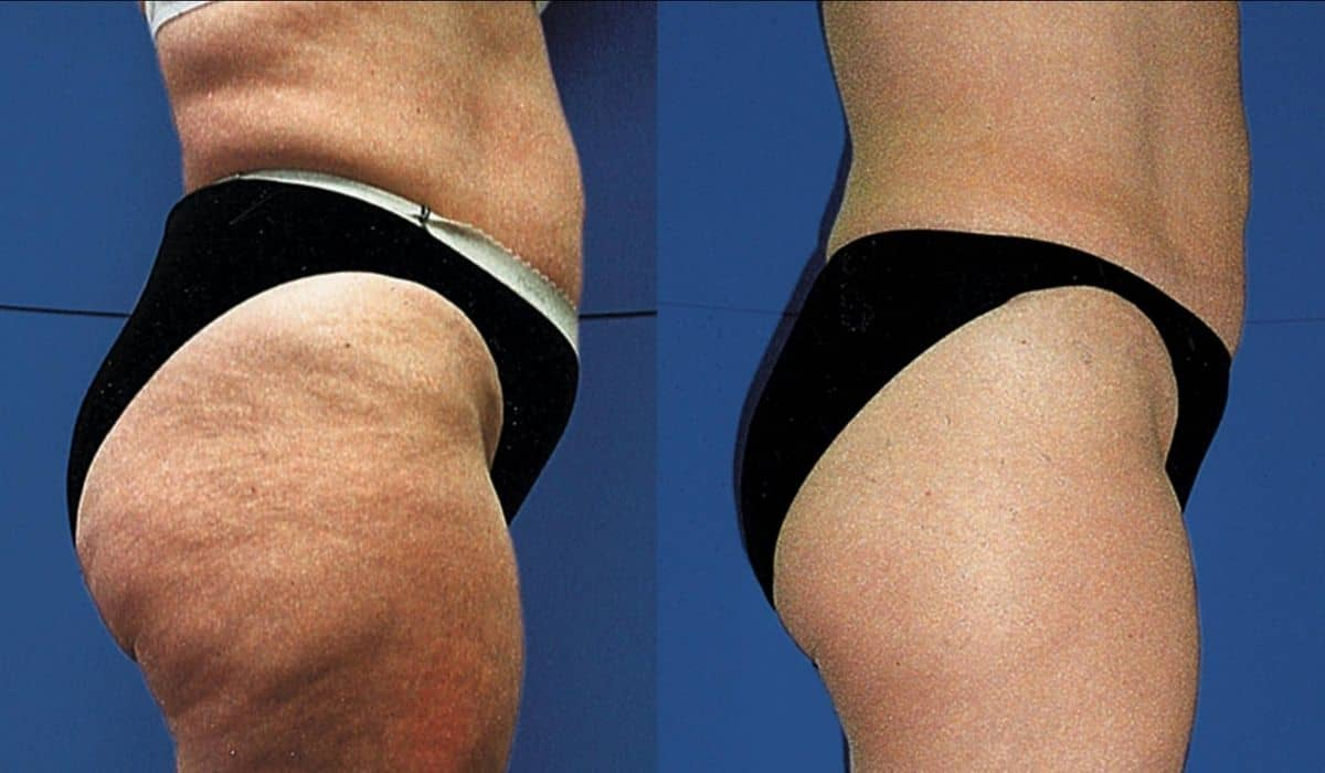 consejos para reducir la celulitis de los glúteos y las piernas