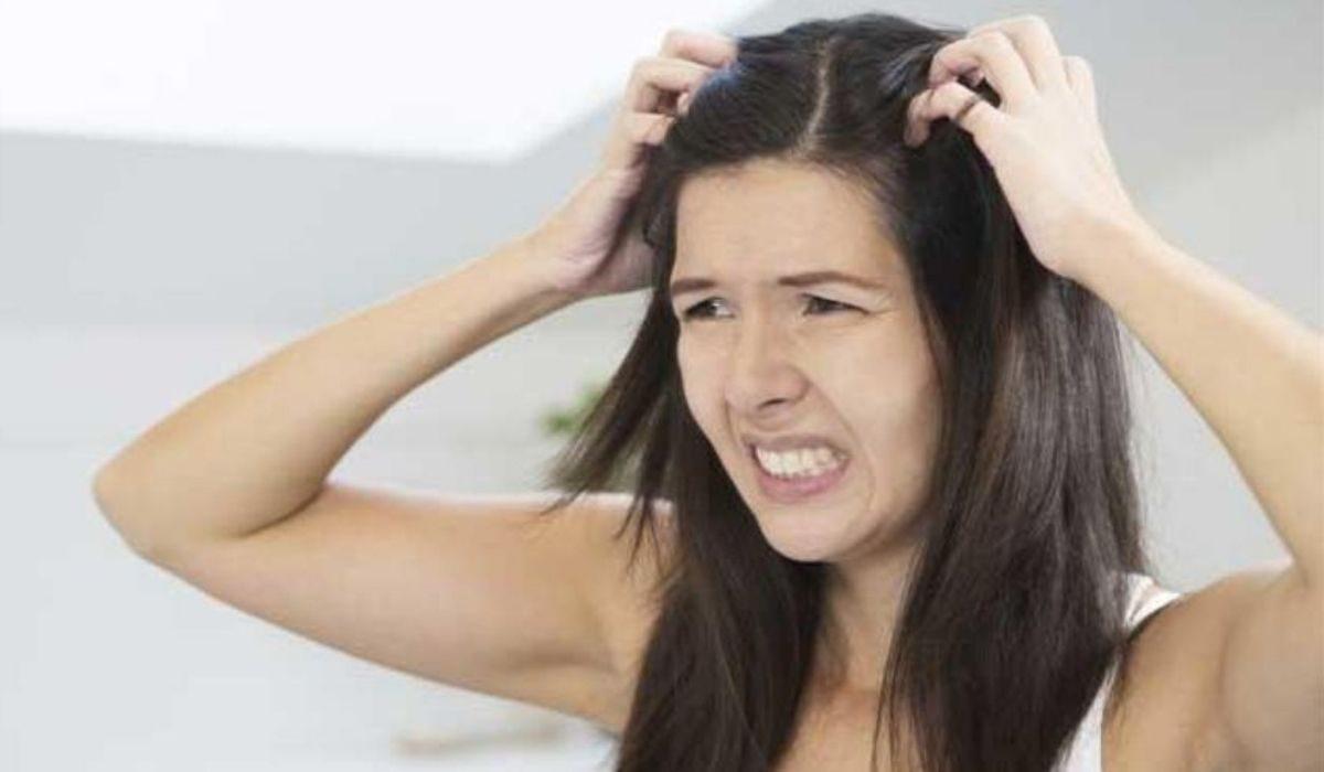 7 remedios asombrosos que te ayudaran a eliminar la caspa
