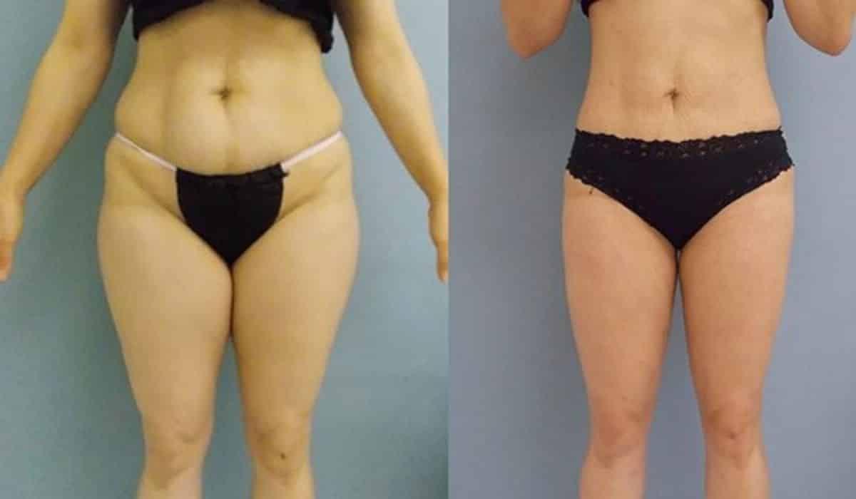 Liposucción de Piernas Figura de extremidades inferiores